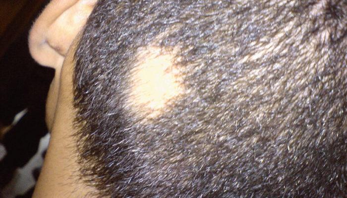alopecia1