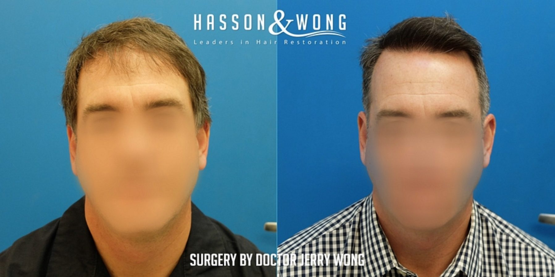 CASO DR.WONG 1862 GRAFTS FUE / HAIRLINE - Hasson & Wong